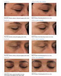 Ideal Complex Eye Cream | PCA Skin producten