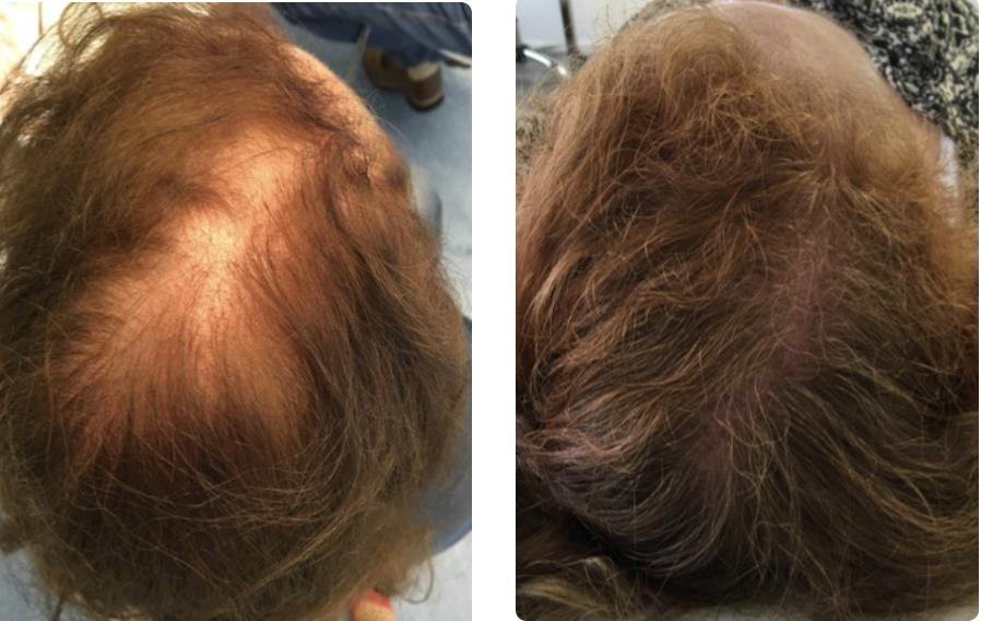 Xl Hair behandeling