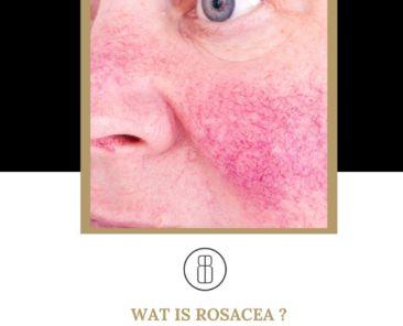 Wat is Rosacea ? Beauté geeft antwoord